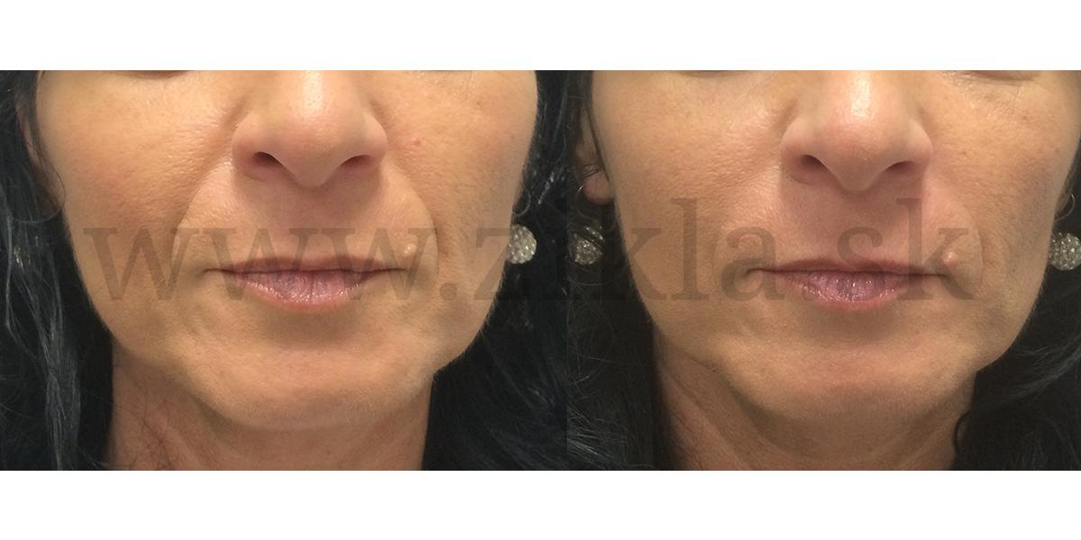 vypln nosovoustnych ryh kyselinou hyaluronovou zikla plasticka chirurgia omladenie tvare