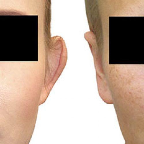 titulna fotografia palsticka-operacia-usi-otoplastika-banska-bytrica-zikla jednodnova plasticka chirurgia esteticka chirurgia plasticke operacie