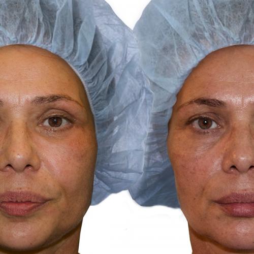 facelift pred a po 6 tyzdnoch robene aj dolne mihalnice plasticka operacia podvihnutie tvare omladenie banska bystrica plasticky chirurg