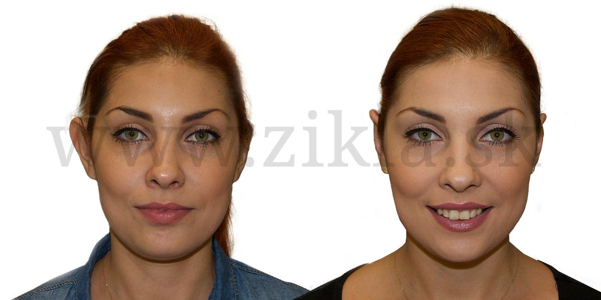 palsticka-operacia-usi-otoplastika-banska-bytrica-zikla jednodnova plasticka chirurgia esteticka chirurgia plasticke operacie