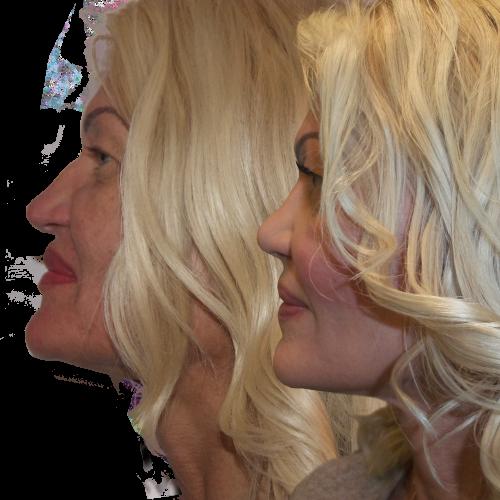 rinoplastika-rhinoplastika-plastika noca-plasticka operacia nos-vyrovnanie-zmenšenie-krajsi-mensi nos-blond-plasticka chirurgia banska bystrica MUDr Ivan Zikla